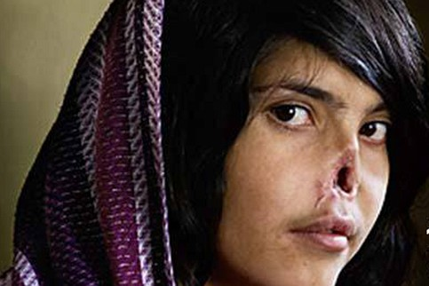 Afghanistan Women Nose Cut Off